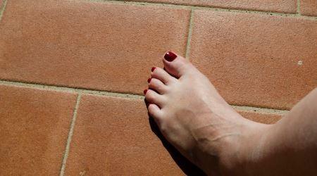 LPG kezelés lábvizesedésre